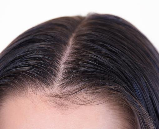 Scalp and parting close up